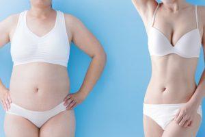 vaser liposuction kimler yaptırabilir