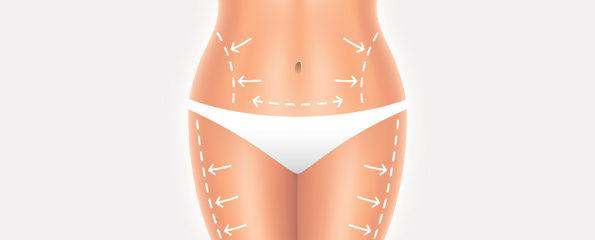 vaser liposuction nedir